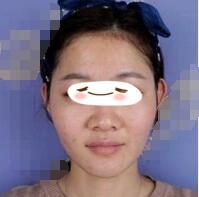 广州海峡整形自体脂肪全脸填充案例 脸小巧、精致了很多