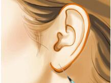 3种丰耳垂的方法,选择哪一种比较好呢?