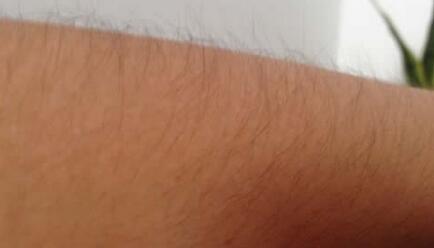 打造光滑肌肤,激光脱毛做几次有效?多久才能碰水?
