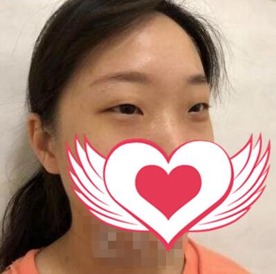 太原麗都整形楊明峰雙眼皮案例 設計比例合理,弧度自然減齡