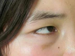 上海百達麗整形去疤痕案例 讓你重新擁有光滑無瑕的肌膚