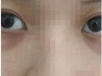 深圳吉美瑞丽斯整形玻尿酸填充黑眼圈案例 效果也是放心的