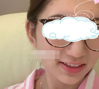 北京艾玛整形面部吸脂案例 术后大家都夸我变得好看了 太开心了