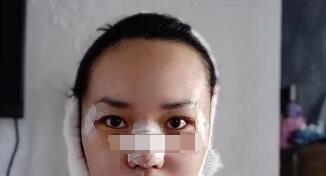 宁德自体肋软骨隆鼻案例 多亏了医生精湛的手术水平