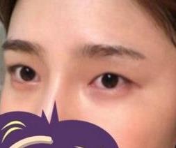 上海伊萊美整形雙眼皮案例 同學都說我變得太漂亮了 很有氣質哈哈