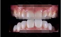 贵阳利美康整形全瓷牙案例 美牙 让我整个人笑起来真是太好看了