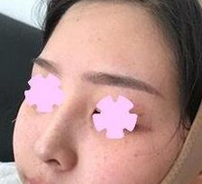 貴陽麗都整形面部吸脂案例 術后45天破繭成蝶之路 秒變小仙女