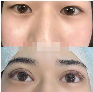 长沙整形李元石医生擅长双眼皮手术 展示技术精湛