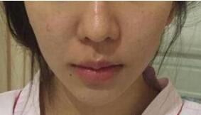 北京煤炭整形唇珠成型案例 术后笑起来真好看 美唇也很性感