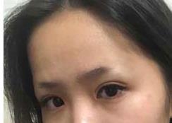 深圳阳光整形纹眉案例 术后看起来颜色很自然,眉形也很美