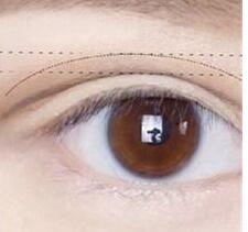 上海医美整形余东医生的双眼皮修复技术扎实吗?