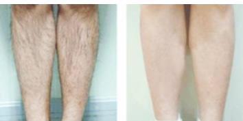 激光脱腿毛会越长越粗吗?激光脱腿毛疼吗?