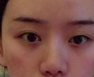 上海东方丽人整形歪鼻子矫正案例 终于变成人见人爱的小美女啦!