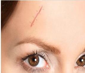 如何快速去掉难看的疤痕?祛疤选择在黄金时期做效果会更好吗?