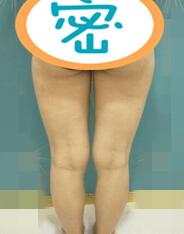 宜宾天使之翼整形水动力吸脂瘦大腿案例 术后的我也是纤纤细腿了