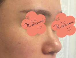 深圳米兰柏羽整形隆鼻案例 我的颜值也因为这次的改善而且飙升了