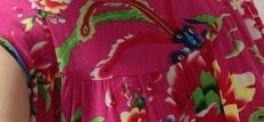 佛山华美整形假体隆胸案例 手感柔软度很好,造型也很美!
