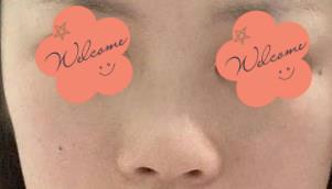 成都天后整形隆鼻案例 术后99天鼻梁的高度和鼻尖的弧度特别好看!