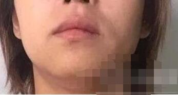 深圳非凡整形下颌角整形案例 术后三个月脸型变得更加好看立体