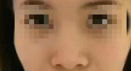 海南瑞韩整形隆鼻案例 术后五官更加精致,鼻子还特别的上镜!