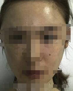 济南海峡整形光子嫩肤案例 术后三个月消失斑斑点点 脸型真干净