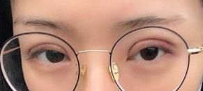 东莞美立方双眼皮案例 术后2个月眼睛很自然,随便化个妆就很美了