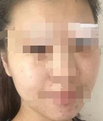 长沙美莱整形面部提升案例 术后肌肤变得越来越好了 年轻了很多