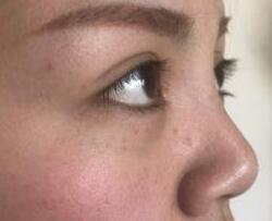 长沙鹏爱整形耳软骨隆鼻+开眼角案例 美鼻+美颜提升你的颜值