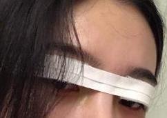广州曙光整形双眼皮案例 拆线那天,整条线看起来很自然很舒服!