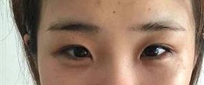 宁夏华美整形双眼皮案例 术后2个月变成大眼睛的美女,很激动~