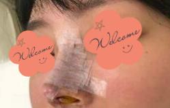 【隆鼻失败案例分享】术后的十五天,鼻子整个轮廓新晰了