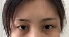 【双眼皮真人案例分享】眼睛恢复的如此之快,看起来十分自然!