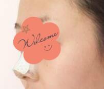 【隆鼻案例分享】做完鼻子五官变得好精致~颜值提升一个level