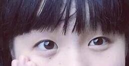 上海整形双眼皮手术案例 美丽动人的大眼睛原来自己也可以拥有
