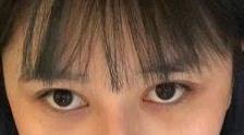 【双眼皮真人案例分享】术后三天膨胀变美,单眼皮变成双眼皮了!