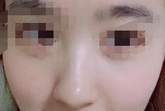 武汉热门医院做鼻部综合术真人案例 鼻子给人感觉很立体好看