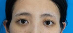 【北京做玻尿酸填充太阳穴案例】 术后脸型变得很好看