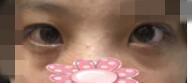 玻尿酸填充泪沟案例:注射两支1ml的,挺自然的