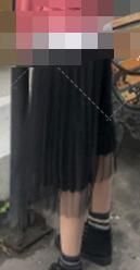 济南做吸脂瘦腿真实案例 术后我真的变漂亮了 走到哪里都被夸