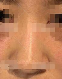 杭州做自体脂肪填充隆鼻案例 术后鼻子变得更加的好看 漂亮
