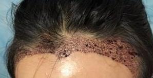 【植发案例】头发看起来自然典雅,让我成为一位精致的猪猪女孩!