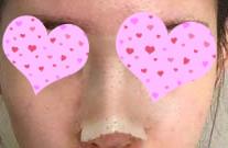 【假体隆鼻案例】一个小小的手术就让我变成了气质美女!嘻嘻~