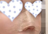 看我这40天后的耳软骨垫鼻尖手术,再决定你要不要做鼻整形