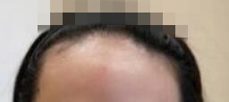 产后雌激素快速回落导致的脱发,在植发后的半年效果如下