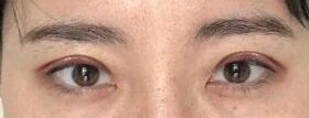 看着自己的眼睛变得这么好看心里美美的 上海做双眼皮修复案例