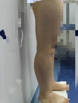 【大象腿小姐姐的福利】瘦腿案例 抵挡不住一双美腿的诱惑
