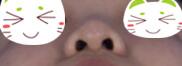 这是我新做的隆鼻,可以给想做隆鼻的宝宝做一些参考