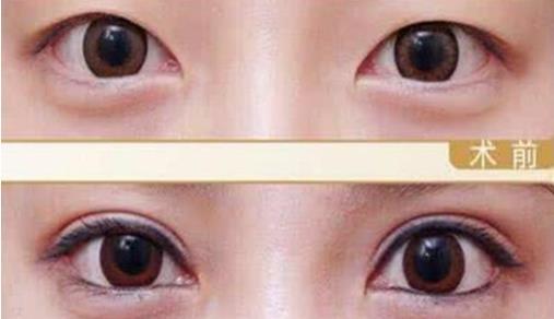 广州王媛医生割双眼皮怎么样?看真实双眼皮案例效果图