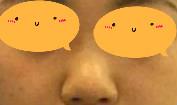 隆鼻真实案例:不仅显得脸也小了,而且立体感也强了