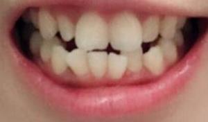 """牙齿矫正一年左右大白牙图片,理解了""""笑出强大""""为何意"""